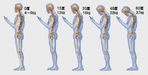 松原市にしかわ整骨院で肩こりが劇的に改善する